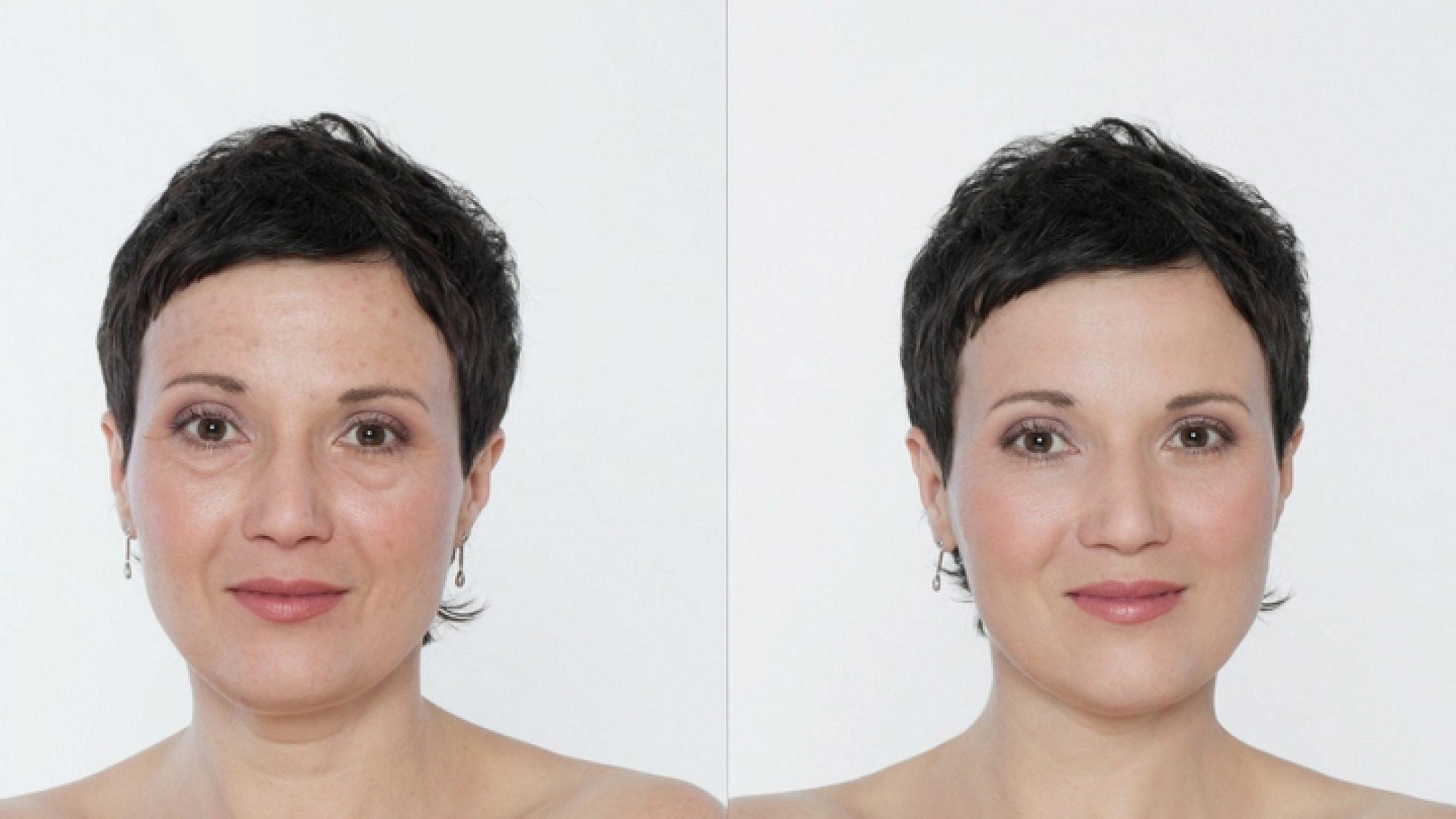 לפני ואחרי טיפול פילינג | צילום: Shutterstock