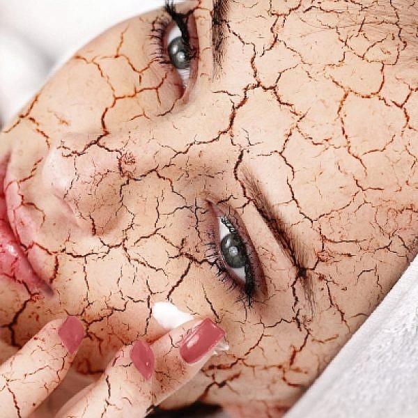 איך להתמודד עם עור יבש?   צילום: shutterstock
